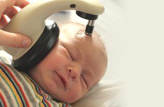 bebe depistage neonatal surdite PEA